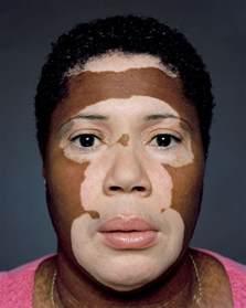 skin care for vitaligo picture 3