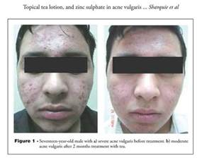 exposed acne solution picture 6
