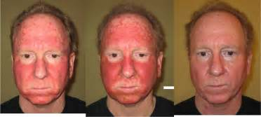 fluorouracil 5 cream side effects picture 3