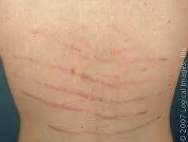 c4 what causes stretch marks picture 15