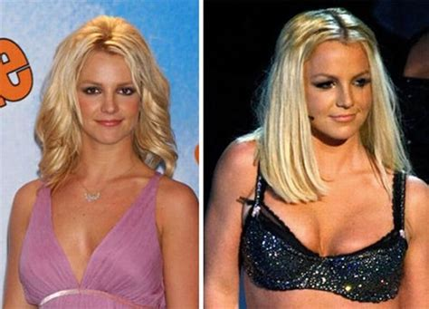 actresses and breast augmentation jobs picture 6