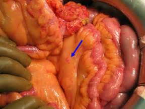 ovarian intestinal cancer picture 2