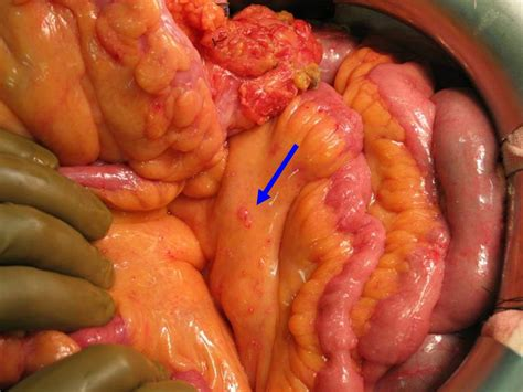 Colon cancer definition picture 14