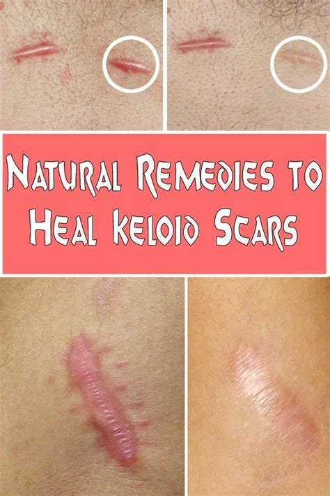 scars herbal healing picture 10