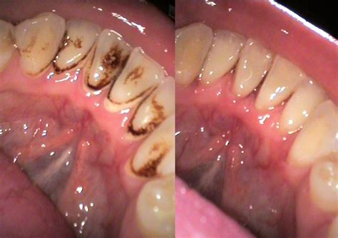 can dental hygienist remove cement from teeth with picture 12
