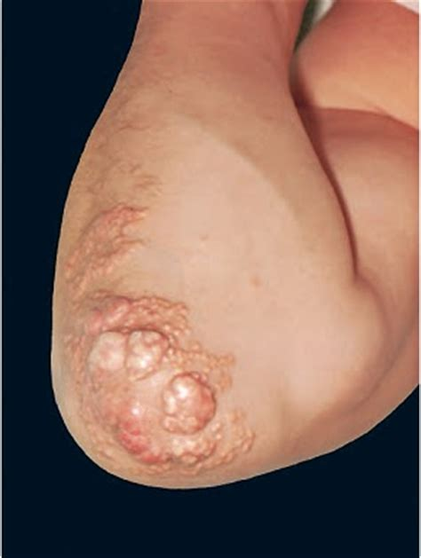 cholesterol deposits on skin picture 11