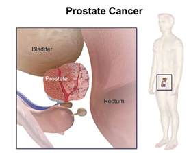 Can prostate cancer people have picture 5