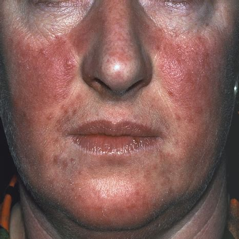 acne roseca picture 3