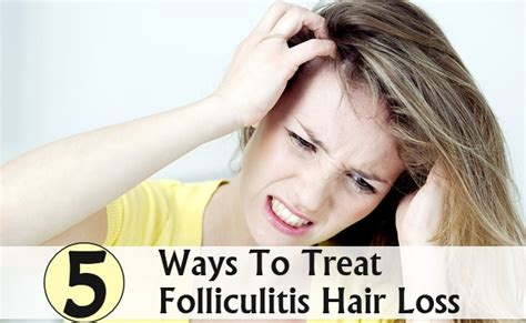 can macafem help treat hairloss picture 14