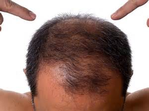 anemia causing hair loss picture 2