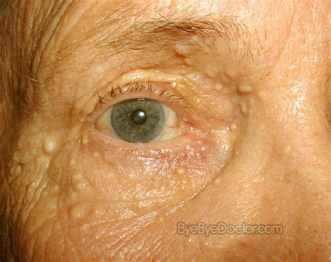 herbal medicine for syringoma picture 2