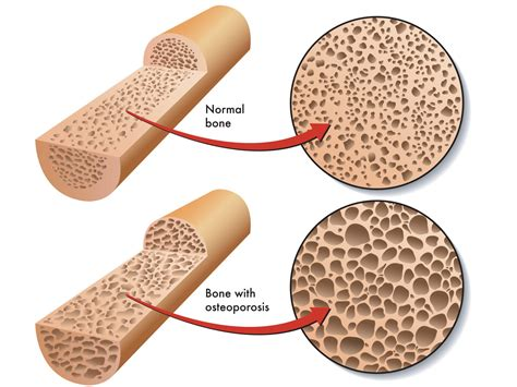 menopause joint pain picture 11