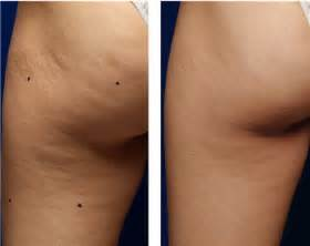 cellulite heat works picture 1