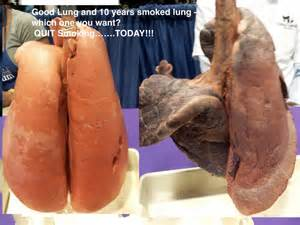 smoking and gastrointestinal disease picture 11