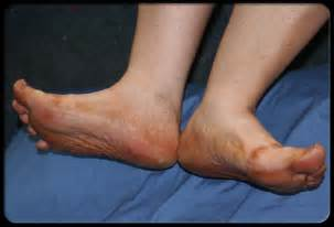aging foot problems picture 13