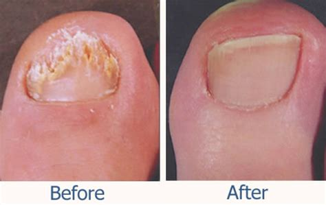 laser treatment for fungi nails in nc picture 4