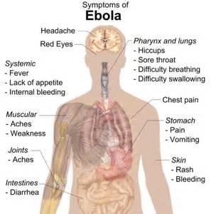 virus dec 2014 that causes a terrible headache picture 7