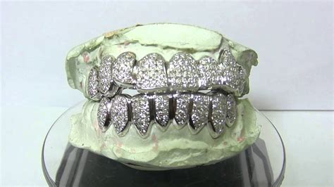 gold teeth by paul wall picture 7