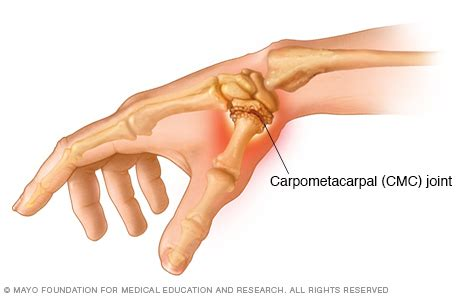 cmc joint picture 3