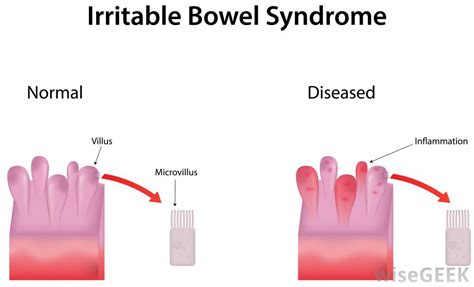 irritable bowel syndrome and uality picture 1