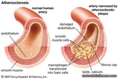 marijuana & cholesterol picture 9