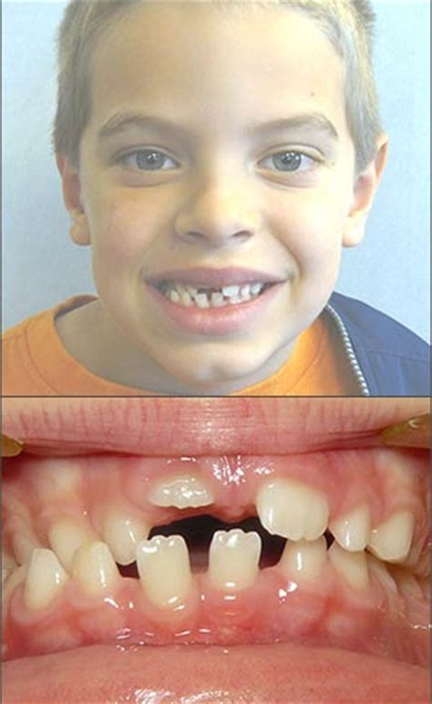 align of h after braces picture 11