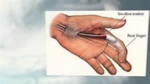 left index finger joint pain picture 2