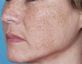 red skin marks on face picture 7