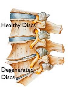 cream for degenerative spine disease picture 13