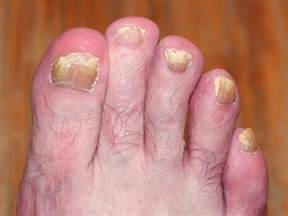 signs of toenail fungus picture 10