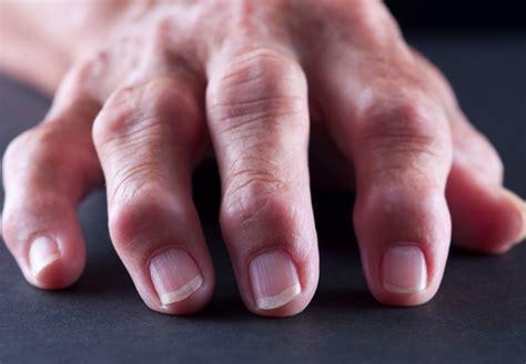 arthritis degenerative joint disease picture 2