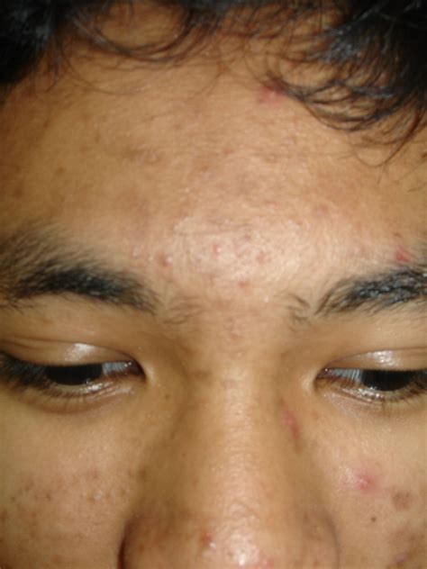 acne cysts picture 2