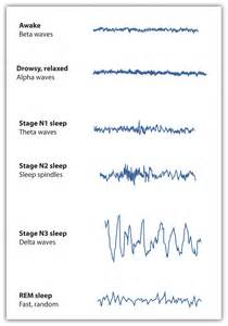 convulsions during sleep picture 6
