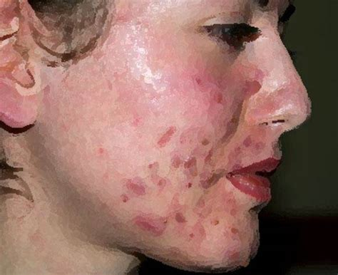 acne health submit url picture 1