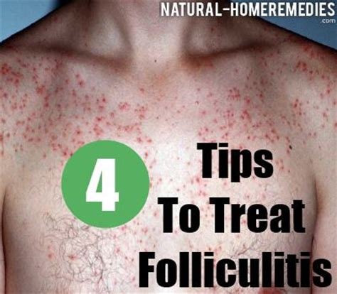 folliculitis home remedy picture 14