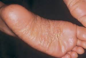 foot skin problems picture 6