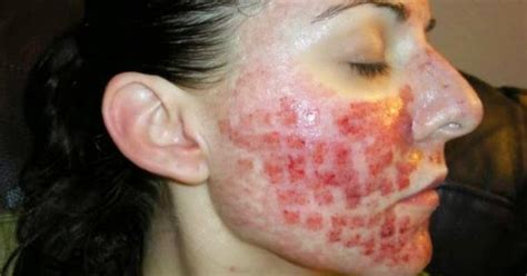 acne infantum picture 5