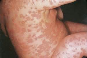 dry skin on feet and hiv picture 9