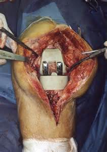 mrsa knee joint surgery picture 6