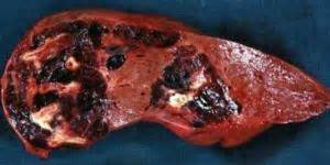 hemangioma and m in liver picture 13