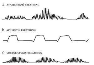 pontine sleep center and cheynes-stokes respiration picture 6