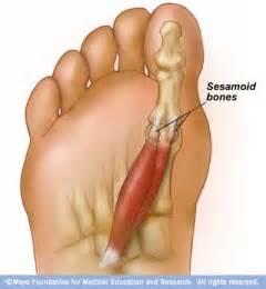 pain in bones picture 6