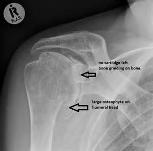degenerative joint disease of the left shoulder picture 15