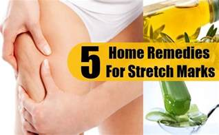stretch mark home remedies picture 11