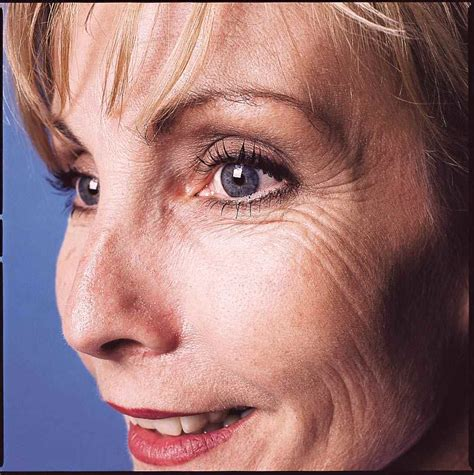 what is the most active ingr. for wrinkles picture 1