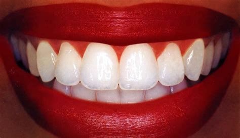 and your teeth picture 17