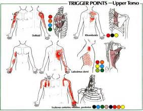 muscle spasms and pain in upper shoulder and picture 1