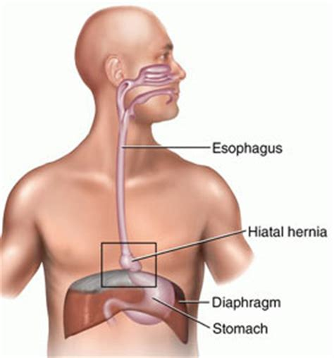 cause of yeast in esophagus picture 11