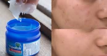 vicks vaporub acne picture 1