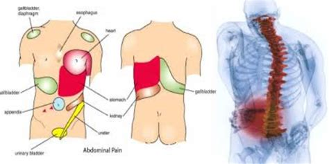 sore joints on the left side of the picture 4
